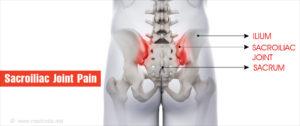 medenceízületek kezelése a gerinc ízületeinek krónikus gyulladása