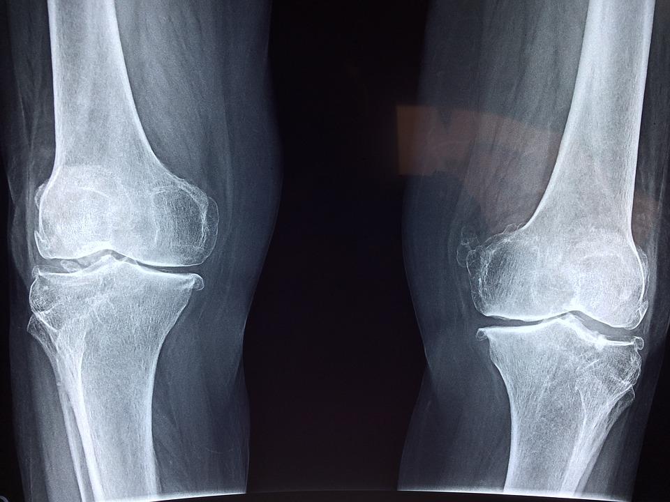 2 szakaszból álló ízületi gyulladás az ízületekben gerincvelő csontritkulás gyógyszeres kezelése