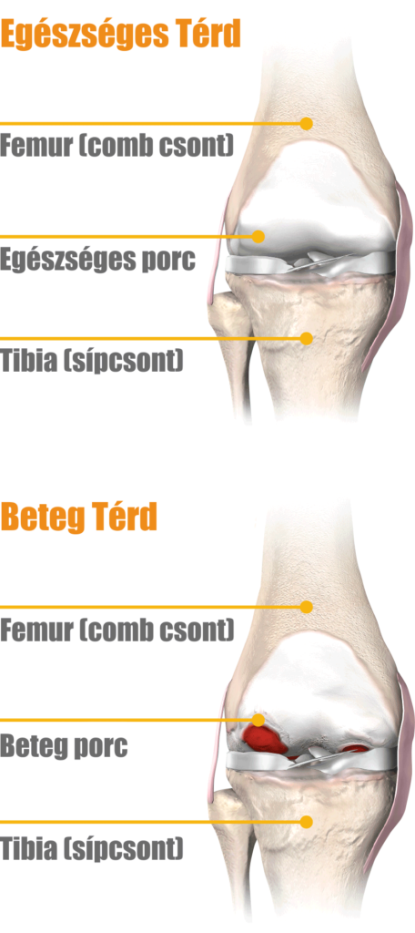 a térdízület 2. fokú ízületi gyulladása hogyan kezelhető
