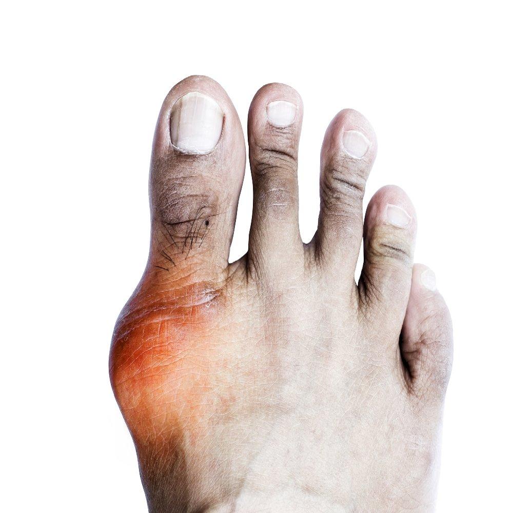 artrózis ödéma kezelés