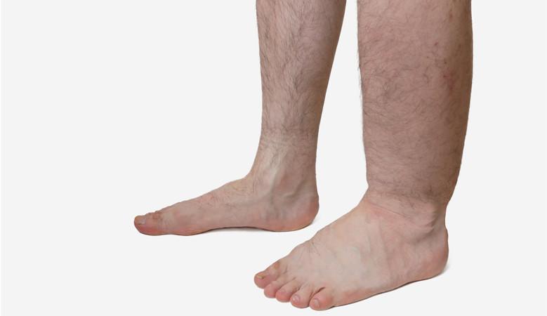 hogyan kell kezelni a duzzadt bokaízületeket