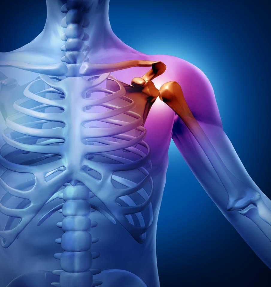 A nők a nyakukban hordják a lelküket? – A nyakfájdalmak lelki háttere