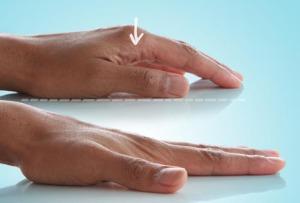az ujjak falának deformáló artrózisának kezelése ízületi arthrosis a kéz