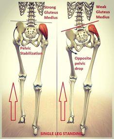 Vállműtét (stabilizációs műtétek, nyitott vállműtét)