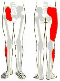 Sacroiliacalis ízület disfunkciója okozta derék és lábfájdalom