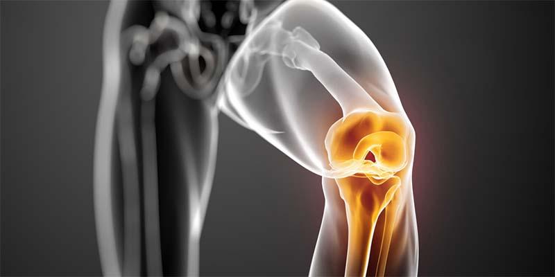 csukló artritisz kenőcs a könyökízület nagyon fáj, mint a kezelés
