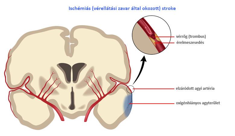 ízületi fájdalom ischaemiás stroke után. ha a vállízület sokáig fáj