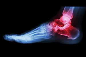 ízületi fájdalom a test bal felében psoriasis artrosis kezelése