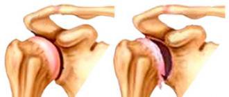 artritisz artrózis kezelésére szolgáló készülékek fáj a hüvelykujj csontja és ízülete