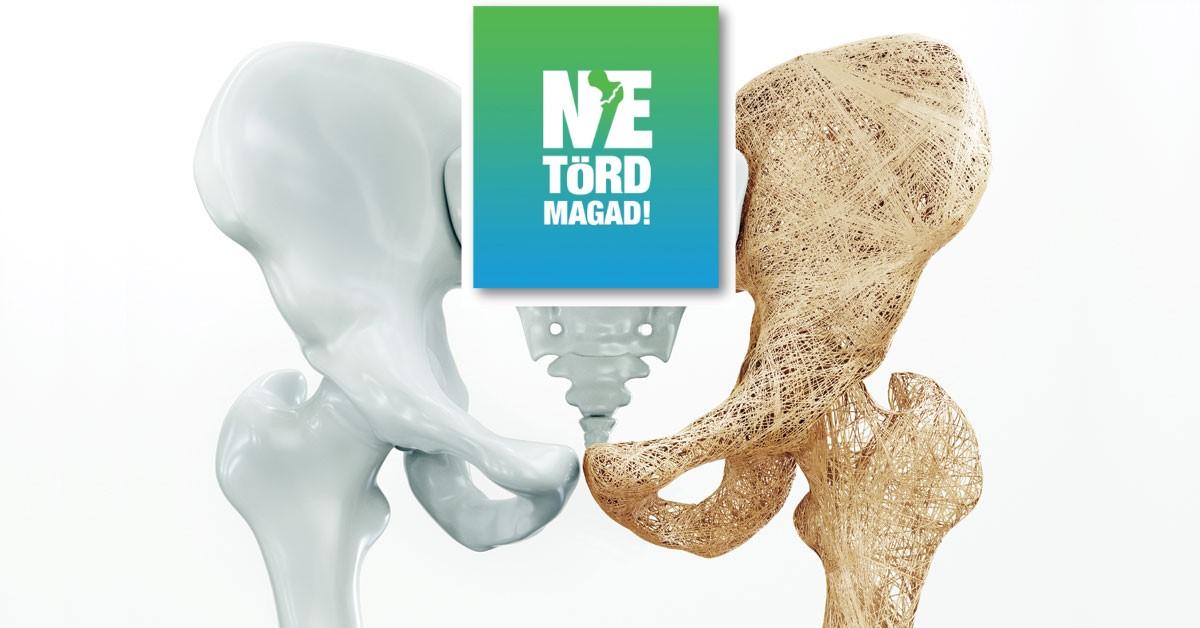 csontritkulás a legjobb kezelés