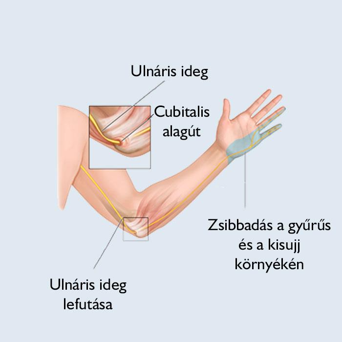 rheumatoid arthritis zsibbadt kezek