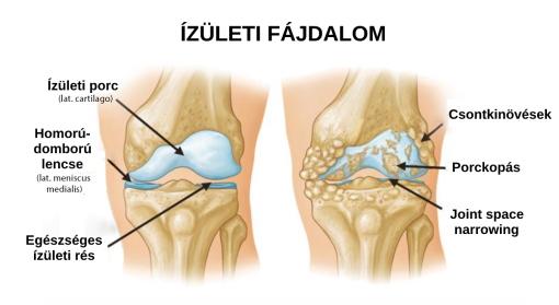 ízületi fájdalom és kötőszöveti diszplázia