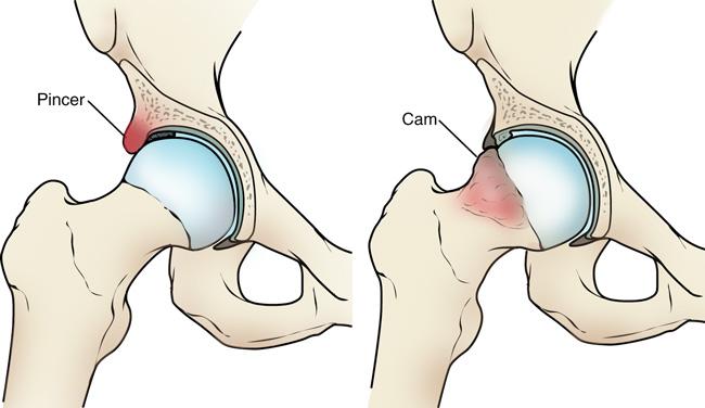 csukló-styloiditis kezelés ízületi osteoarthritis