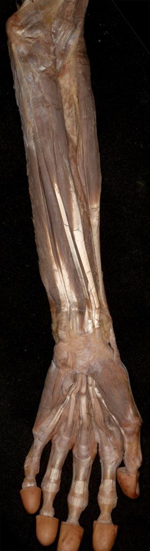 a bal könyökízület artrózisa 1 fok fájdalom a vállízületben sportolás közben