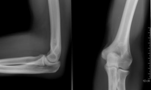 a bal kéz könyökízületének fájó fájdalma