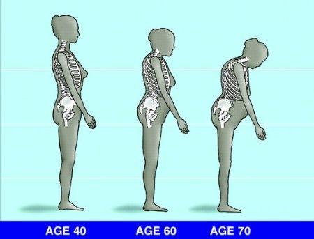 A csontritkulás diagnosztikája