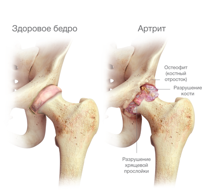 a csípő-coxarthrosis kezelés artrózisa ornithogalum testbalzsam ízületi betegségek kezelésére