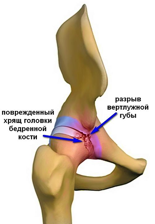 a csípőízület lágy szöveteinek károsodása