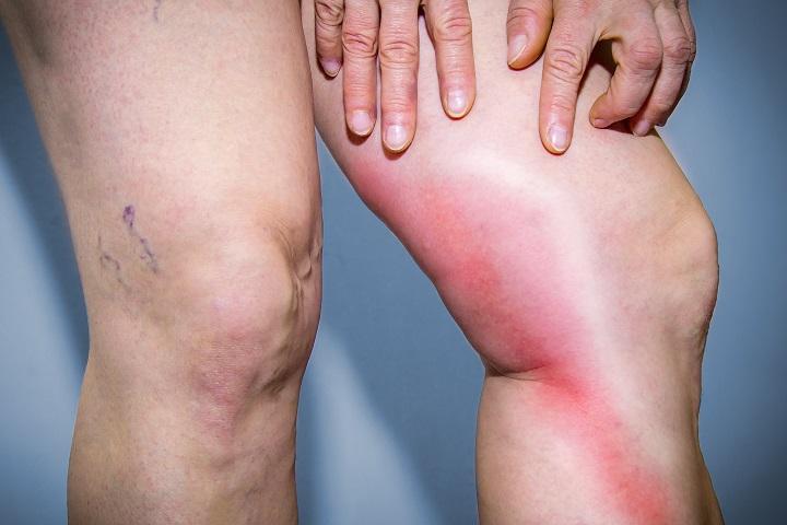 a csuklószalagok gyulladásának kezelése