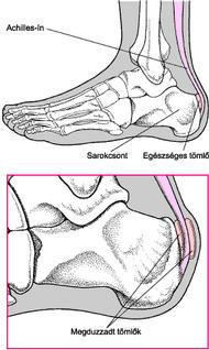 a jobb kar és a láb fájó ízületei