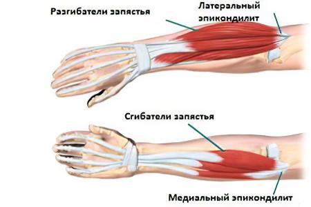 a jobb könyökízület fájdalmának oka kezelés alumíniumfóliás artrózissal