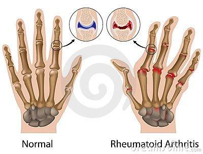 a kar középső ujjának ízületének gyulladása
