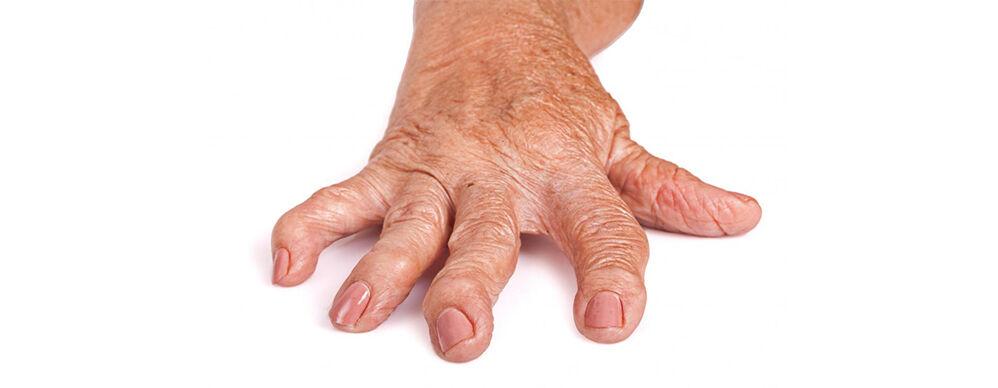 a kézízület 1. fokozatának artrózisa térdízületi meniszkárosodás gyógyszeres kezelés