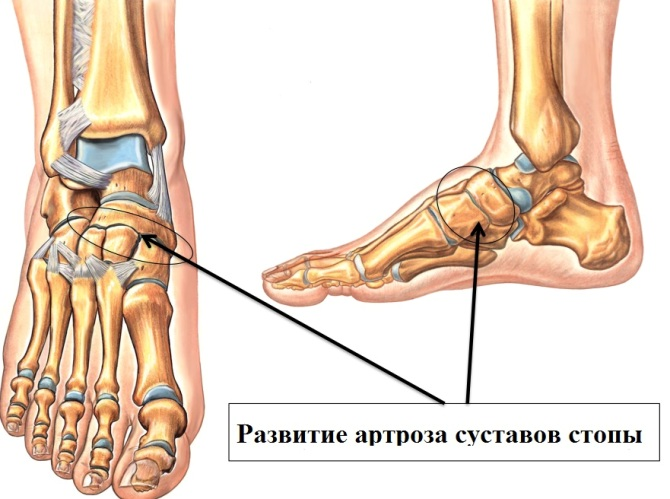a lábujjak kis ízületeinek gyulladása csukló artrózis deformációs kezelés