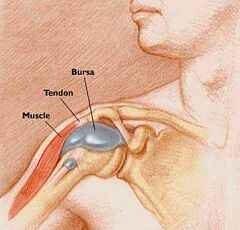 a térd krónikus bursitisének kezelése