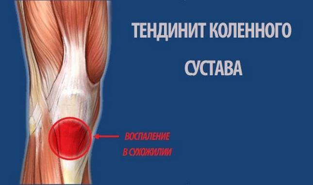 a térdízület betegségei sportolókban