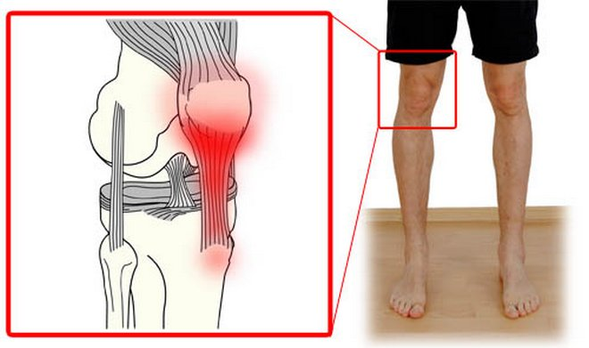 lüktető térdfájdalom térd térdízületi gyulladás