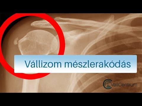 ízületi gyulladás-kompresszió nanoplaszt izületi fájdalmak kezelésére
