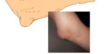ízületi gyulladás és a könyökízület bursitisz hogyan lehet helyreállítani a vállízületet sérülés után