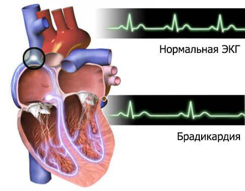 tirotoxikózis ízületi fájdalom