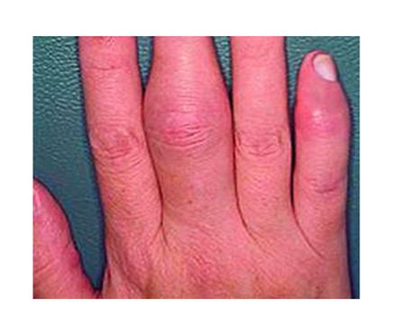artritisz lábujj és lábujj