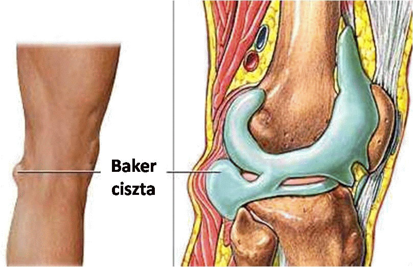 ahol az artrózist kalugában kezelik