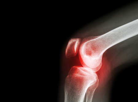 artrózis kezelési technológiák