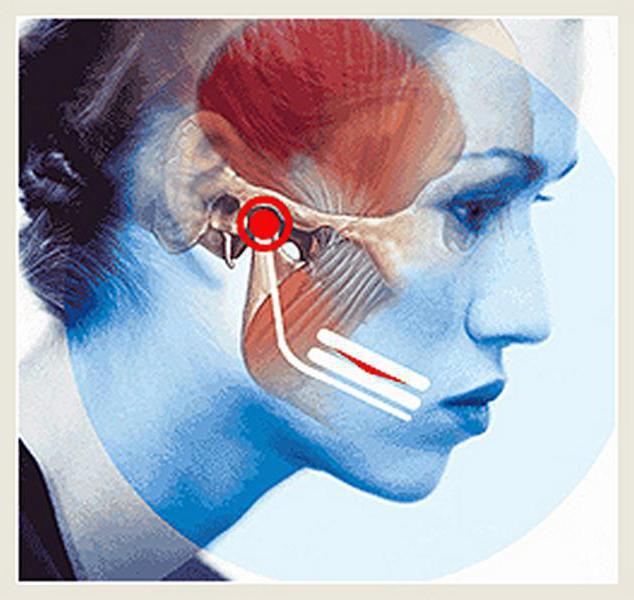 Arthrosis és a maxillofacial ízület gyulladása - Könyök July