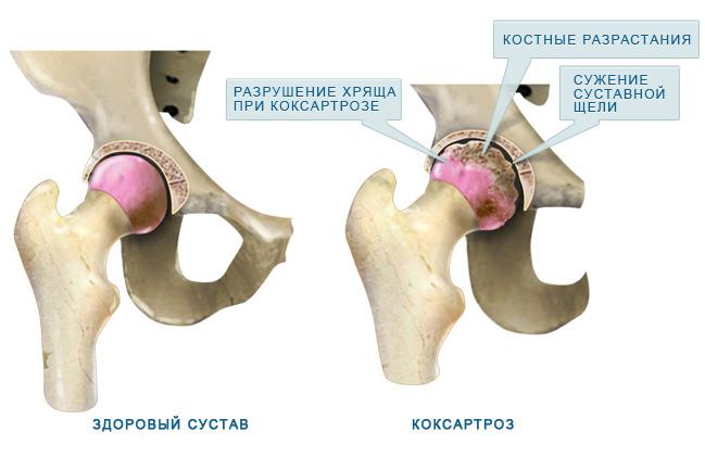 az artrózis kezelése a movalis-nal a jobb csípőízület fájdalmának oka