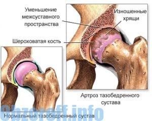 az artrózis sebészi kezelésének módszerei izomfájdalom a térd közelében