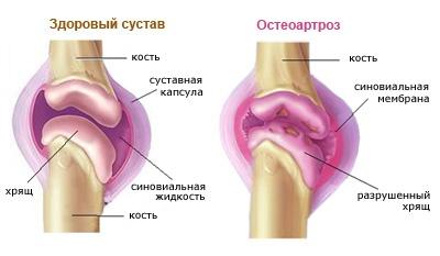 térd osteochondrosis 1 fok