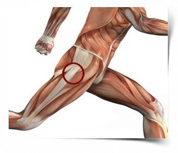 csípőizom fájdalom térdízületi kezelés meniszkuszának degeneratív törése