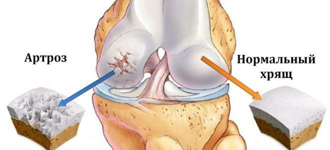 térdízület kezelési tabletták gonarthrosis