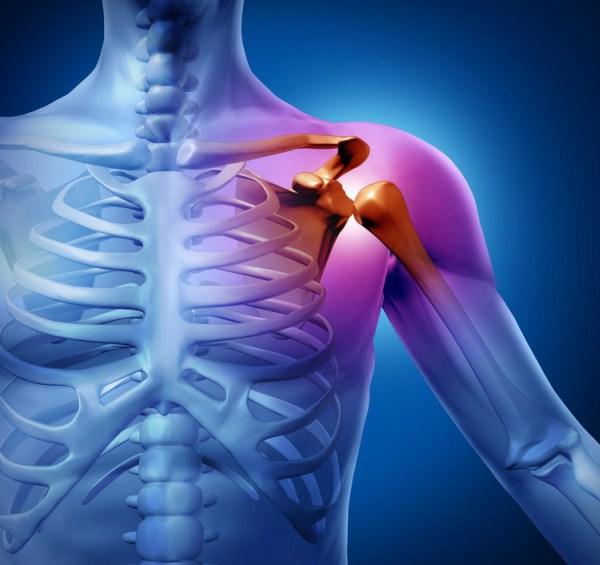 allergiáktól ízületi fájdalmak ujj-reumatoid artritisz kenőcs