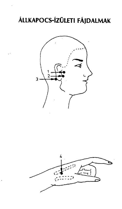 ízületi fájdalom a fülben ízületi neuralgia kezelés