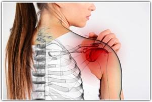 ízületi fájdalom vállak okoz kenőcsök térdízület szinovitisz kezelésére