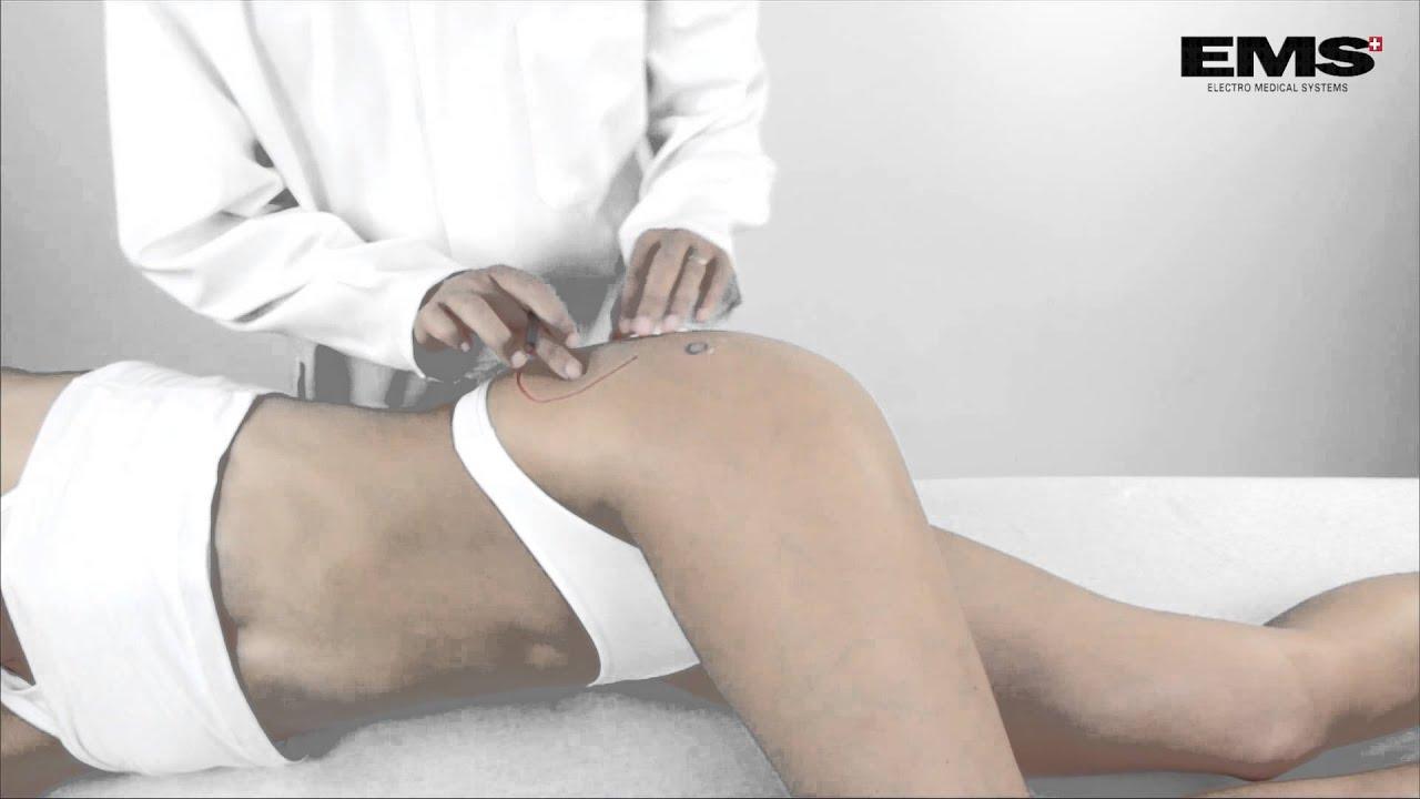 térdízület tabletta artrózisának kezelése