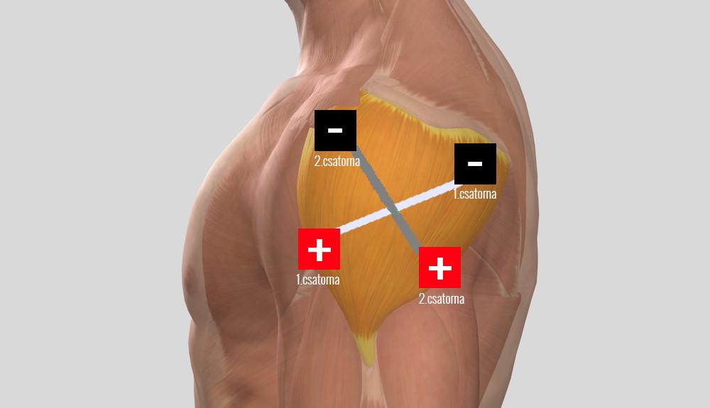a csípőre kattint, amikor fájdalom jár deformált vállízületi gyulladás