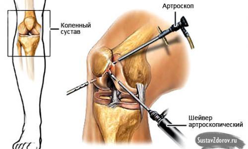 ízületi és izomfájdalom esetén miért fáj a térdízületek, mit kell tenni