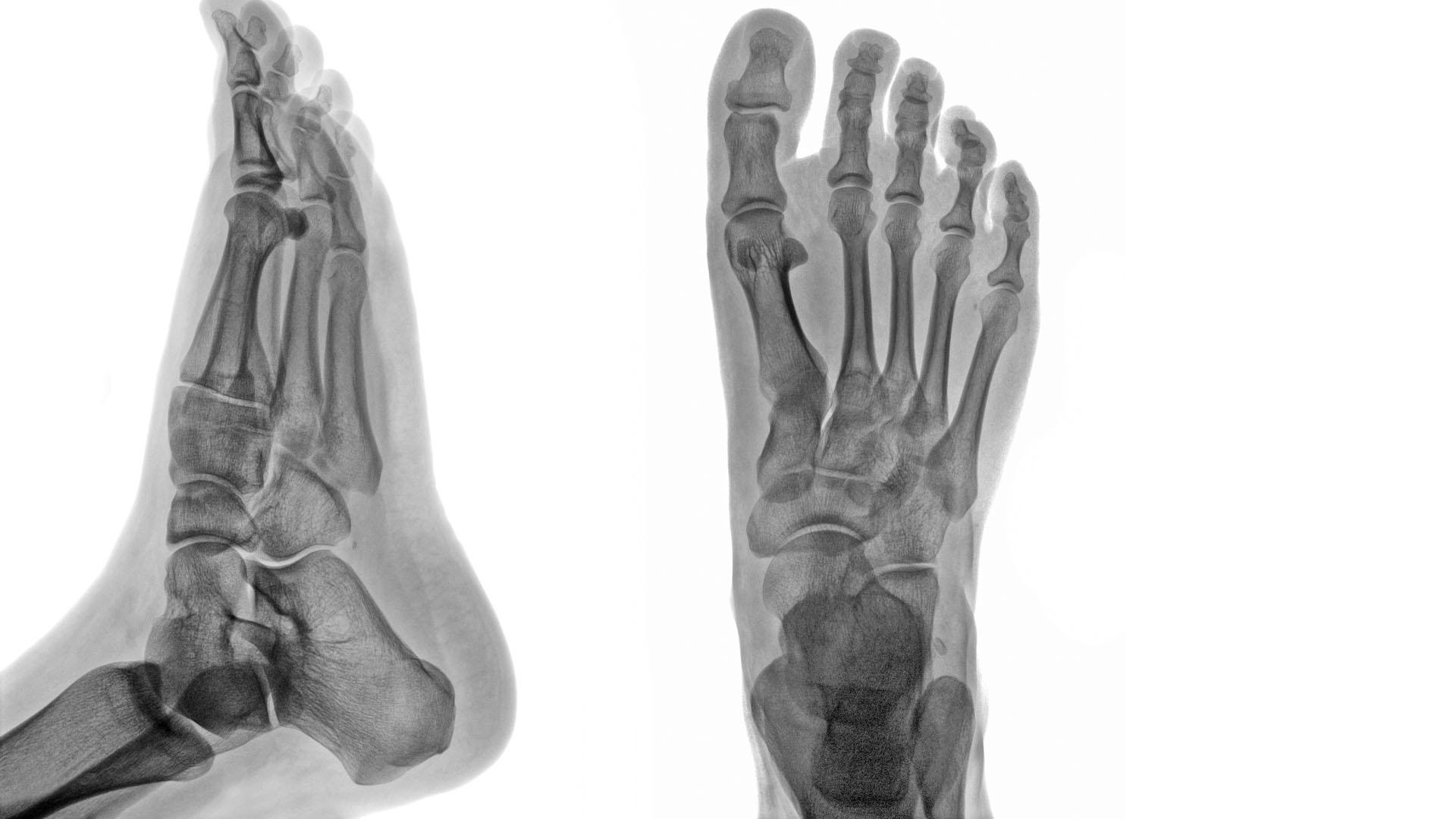 csípőízületek betegségei csípőfájdalom artritisz kezelése